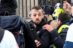 Mladić ostao bez četiri prsta u prosvjedima 'žutih prsluka'