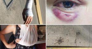 Jedan od napadača iz Supetra lani je bio u srpskom zatvoru