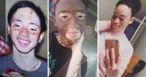 Žena tvrdi da je uspjela vitiligo izliječiti veganskom prehranom