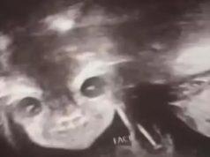 Šokirana slikom s ultrazvuka: 'Moja beba izgleda kao demon'