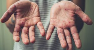 Ospice: Simptomi, način zaraze i moguće komplikacije