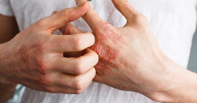 7 prirodnih lijekova za ekcem