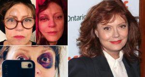 Susan Sarandon pokazala modricu na oku nakon potresa mozga