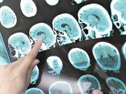 Moždani udar je treći vodeći uzrok smrti kod žena, provjeri smetnje gutanja i vlastiti rizik!