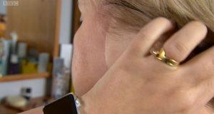 'Izgubila sam uho zbog svoje ovisnosti o sunčanju u solariju'