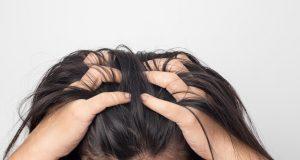 8 načina kojima možeš ublažiti bol, peckanje ili svrbež vlasišta